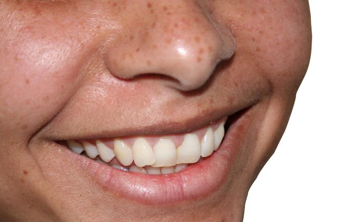 smile-1-1433393
