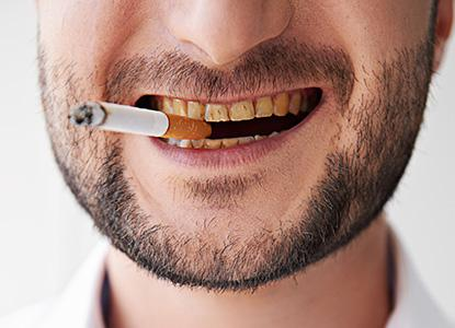 dientes-ytabaco